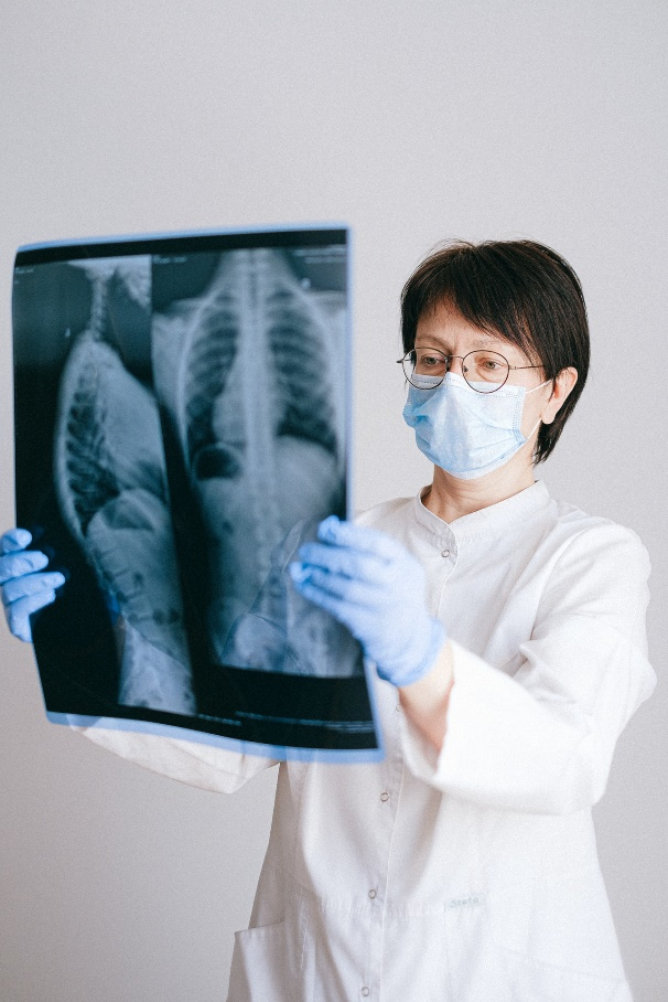 płuca po covid-19