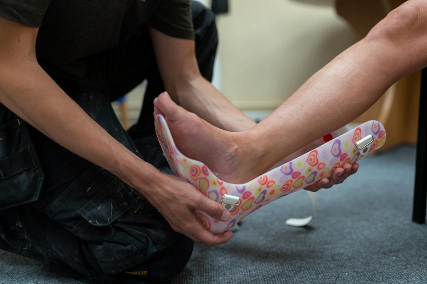 stopa po złamaniu
